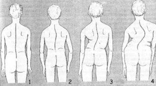 Операции при сколиозе позвоночника показания для операции