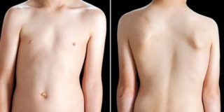 Сколиоз зарядка для спины
