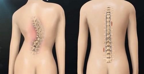 Головные боли при сколиозе грудного отдела позвоночника