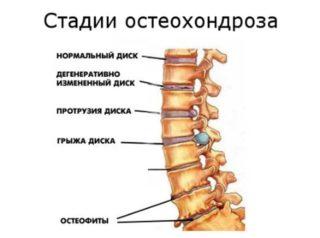 Как колоть «Диклофенак» при болях в пояснице: подробная инструкция