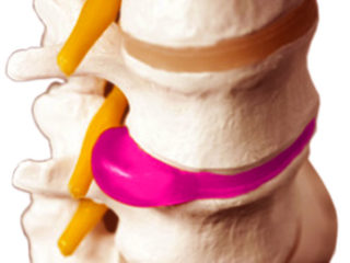 Операция на позвоночнике по удалению грыжи: последствия и осложнения