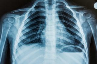 Рентген грудного отдела позвоночника или мрт что лучше