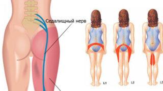 Боль в пояснице справа у женщин причины