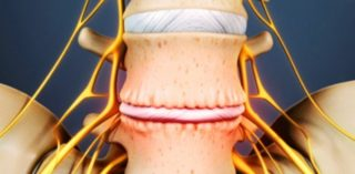 Коксибы препараты при остеохондрозе позвоночника