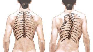 Боли в верхней и грудной части спины, болит верх спины