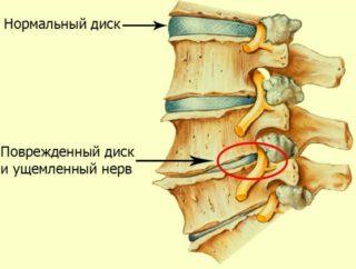 Симптомы и лечение защемления грыжи позвоночника