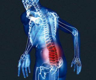 Куда отдает боль при пояснично крестцовом остеохондрозе