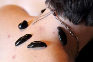 Пиявки при остеохондрозе шейного отдела что такое гирудотерапия, какова польза и вред от лечения, а также фото того, куда надо ставить червей