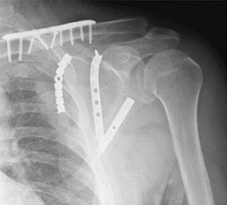 Перелом суставной впадины лопатки по мкб