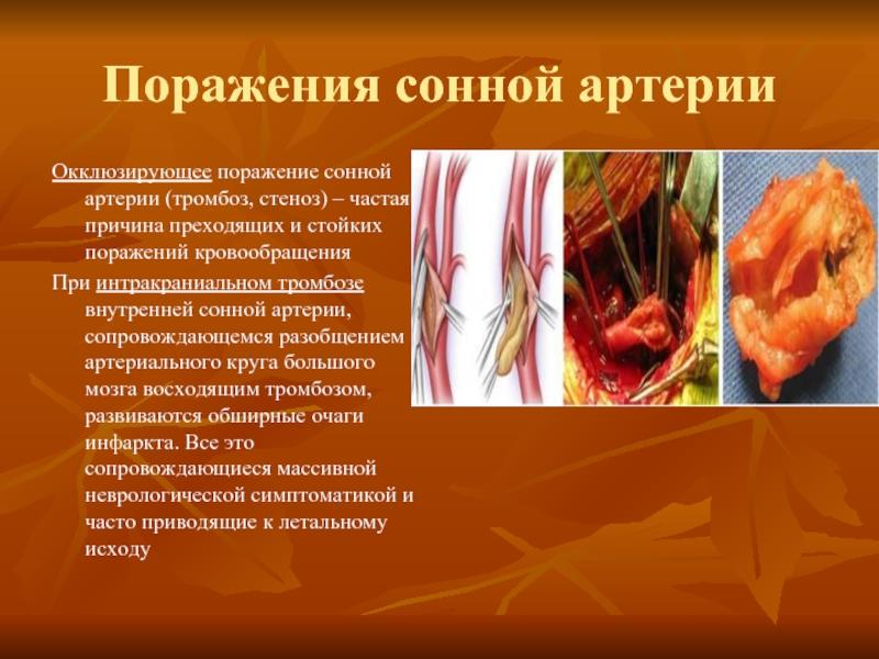 картинка атеросклероза сонных артерий