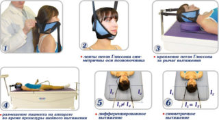 Методы вытяжения шейного отдела позвоночника