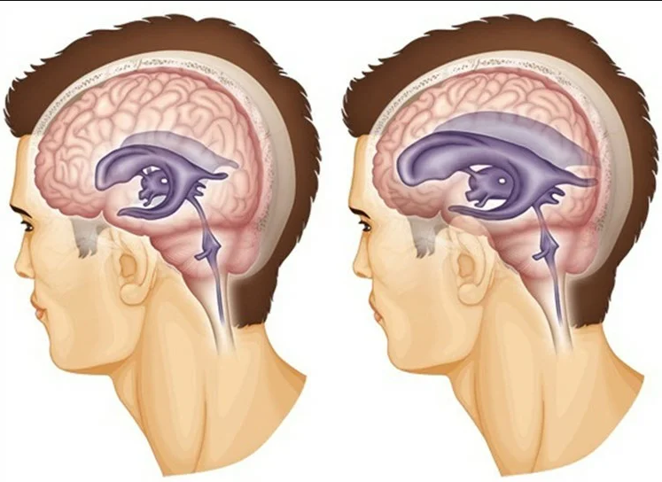 Как лечить черепное давление внутреннее черепное давление ...