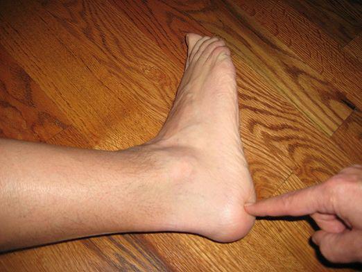 Почему перед сном чешутся стопы ног