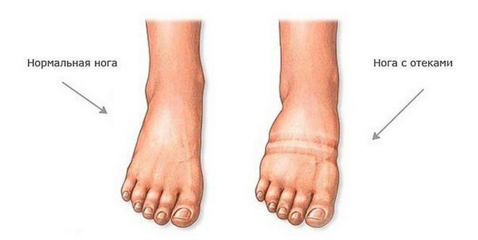 С чем связано отекание ног