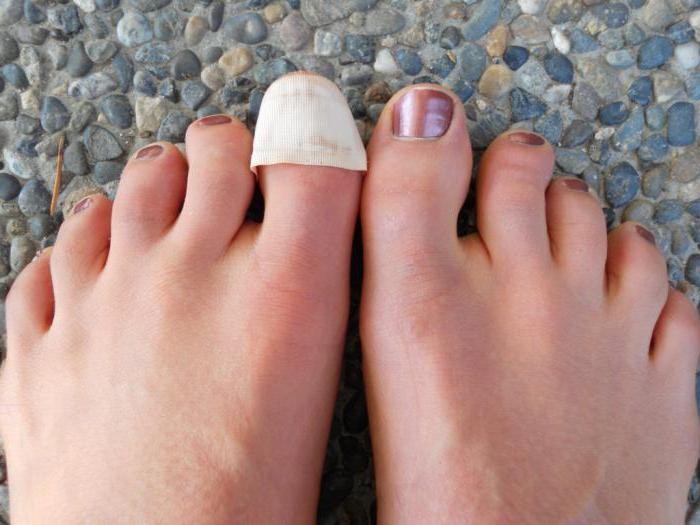 Отслаиваются ногти на ногах почему