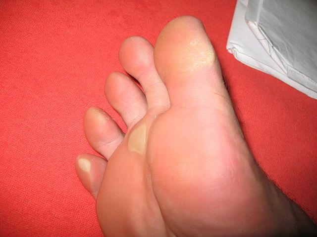 Как лечить мозоль между пальцами на ногах