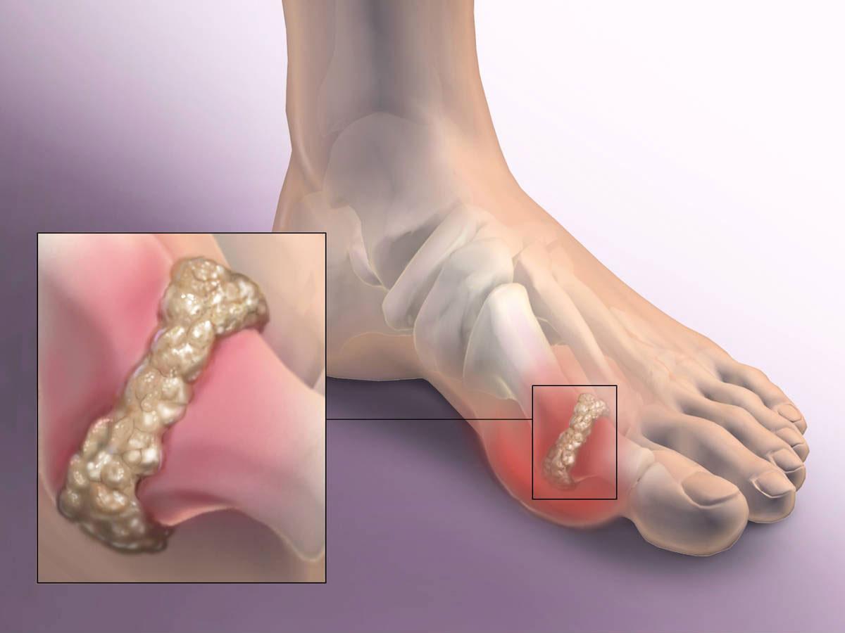 Как лечить суставы ног в домашнем условии