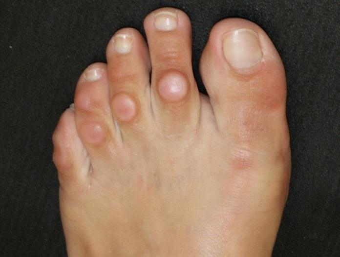 Мозоли на пальцах ног как избавится в домашних условиях