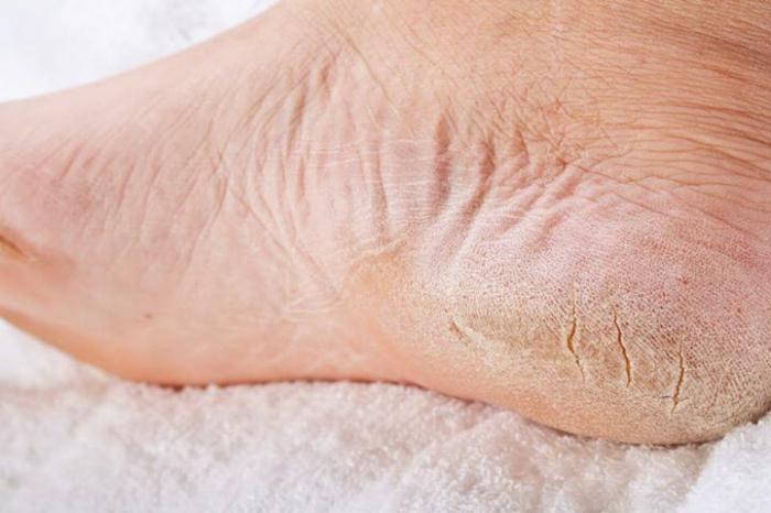 Грибок кожи стопы как лечить в домашних условиях