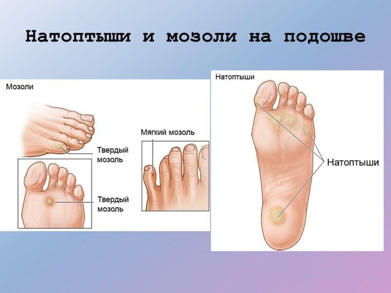 Внутренняя мозоль на стопе и пальце ноги: лечение