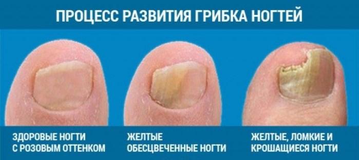 Лечение грибка на ногте