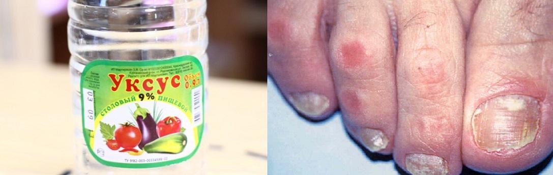 Как лечить грибок на ногтях уксусом с яйцом