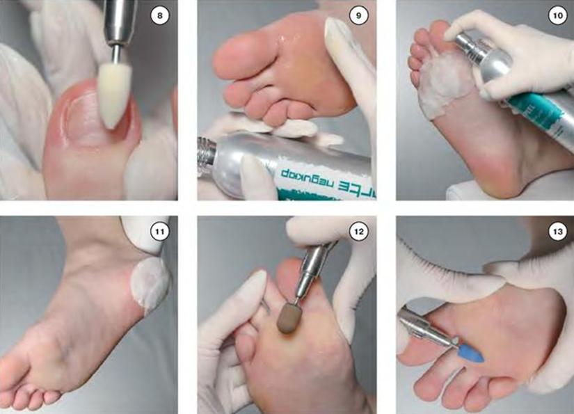 Инструменты для аппаратного педикюра в домашних условиях