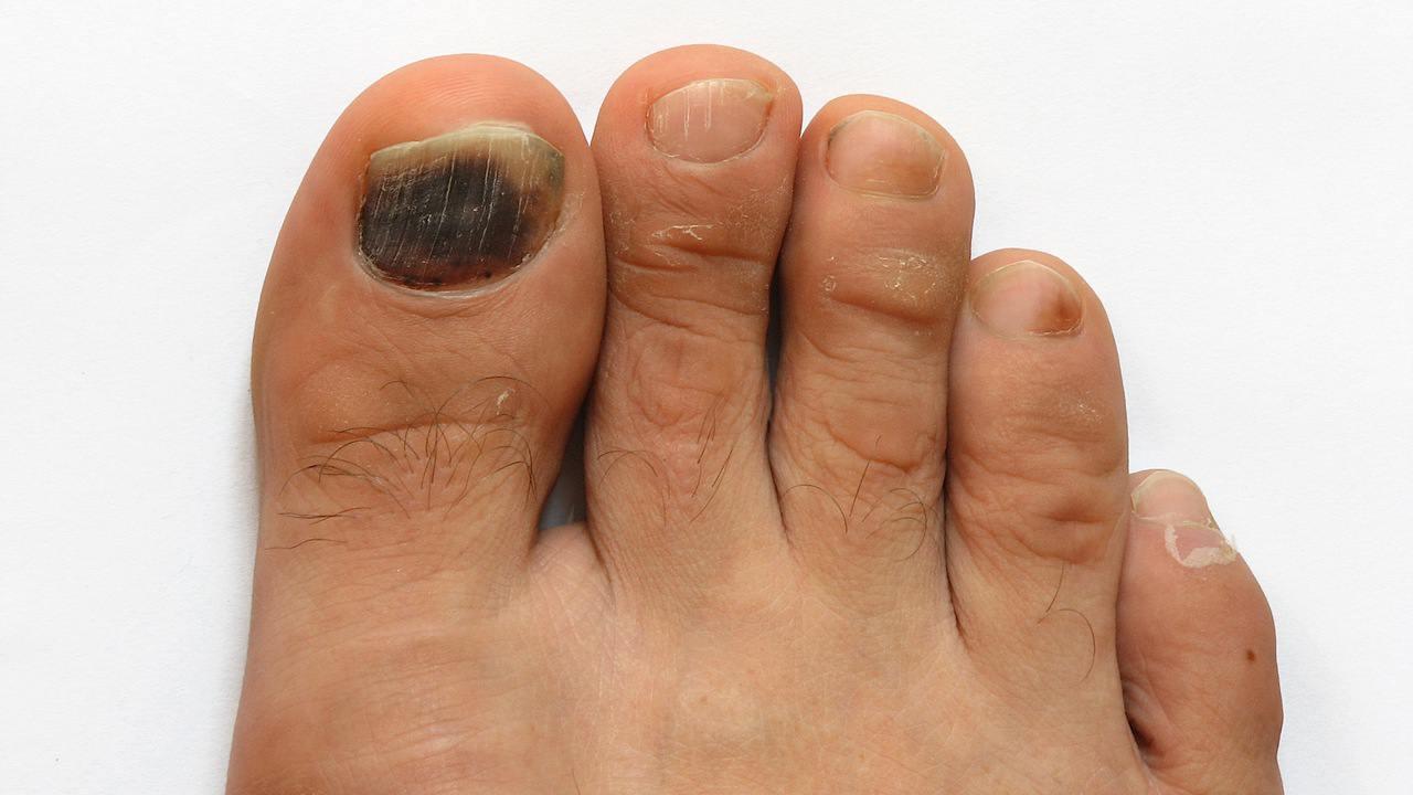 Если почернело на ногах под ногтями