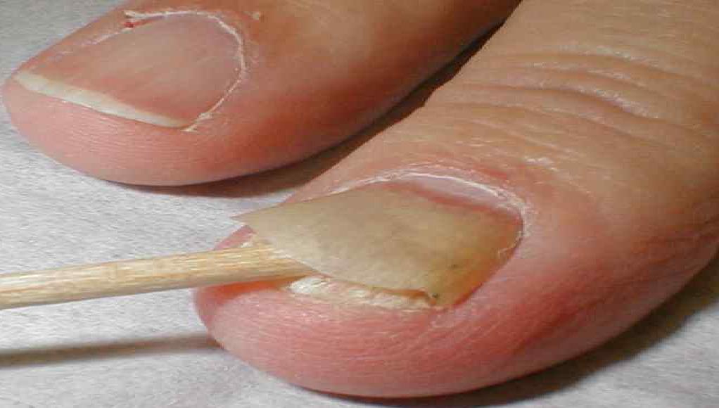 Как избавиться от зубной боли без обезболивающих лекарств