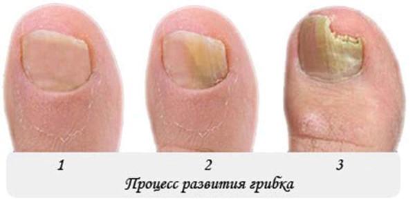 Грибок ногтей на ногах стадии как лечат