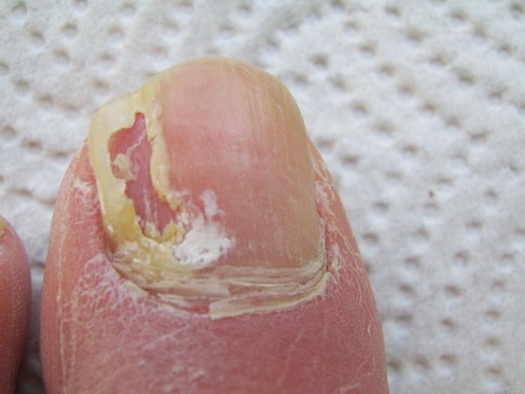 Грибковые заболевания ногтей рук