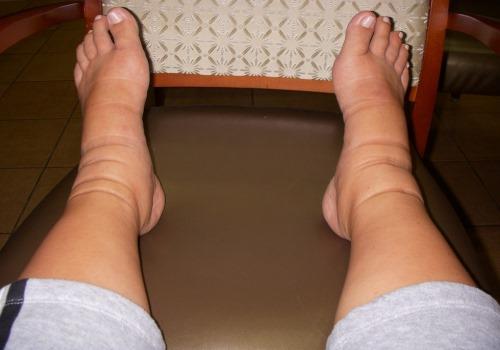 Почему при беременности одна нога отекает больше другой