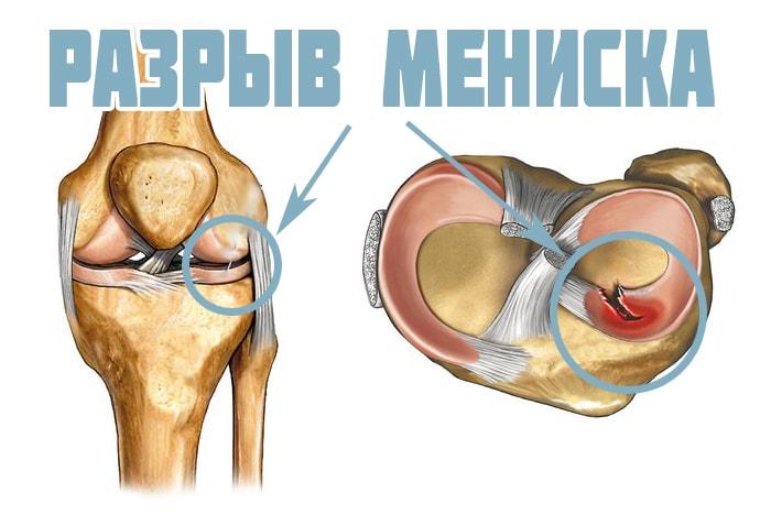 Мениски коленного сустава симптомы лечение в домашних условиях 120