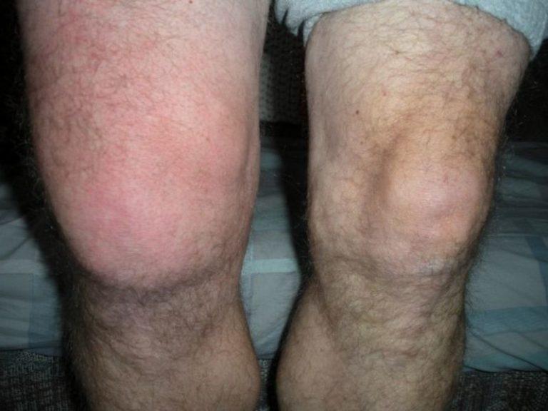 Как сделать так чтобы колени не болели 267