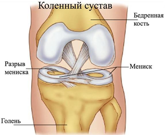 Мениски коленного сустава симптомы лечение в домашних условиях 24